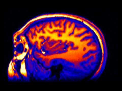Het volwassen brein 2: ons drievoudige brein
